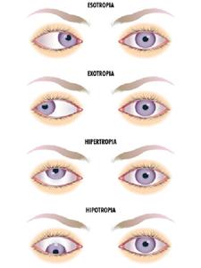 9b1c95e41 Estrabismo, é uma condição na qual os dois olhos não olham para o mesmo  lugar ao mesmo tempo.